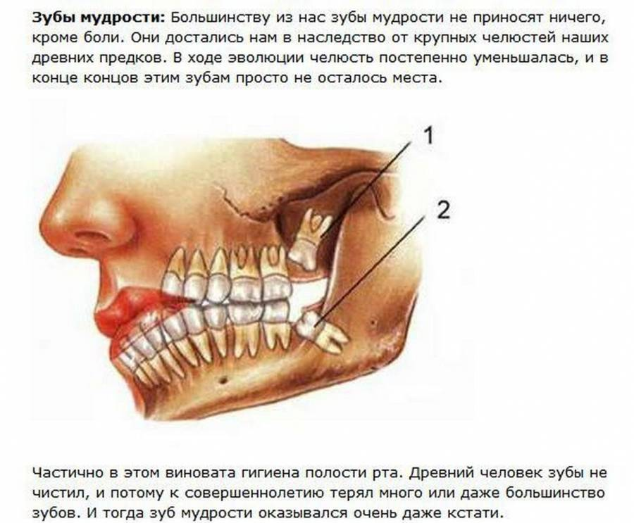 Зубы мудрости в челюсти