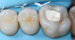 Сколько может стоять временная пломба на зубе — Зубы