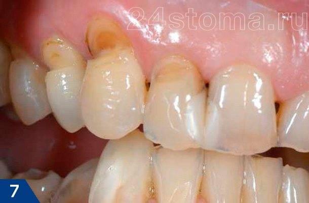 Клиновидные дефекты в пришеечных областях зубов верхней челюсти