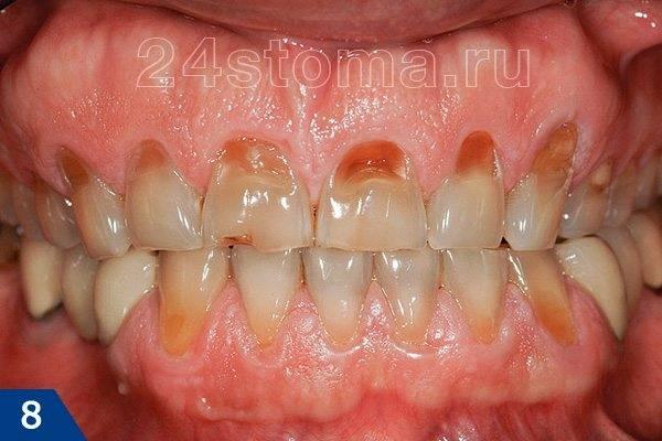 Повышенная стираемость (эрозии) твердых тканей зубов