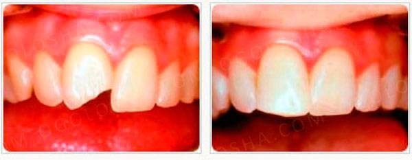 Шинирование зубов стекловолоконной лентой
