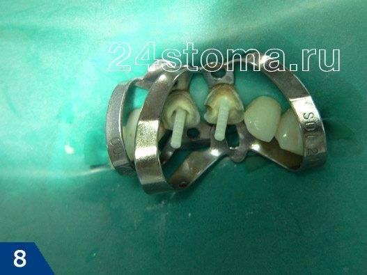 На зубы наложен коффердам для изоляции от слюны, а в корневых каналах зубов фиксированы стекловолоконные штифты
