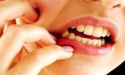 Симптомы при воспалении надкостницы зуба