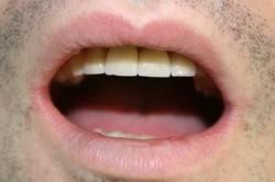 Неровные края зубов - причина хронического стоматита