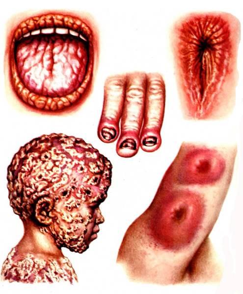 Кандидоз полости рта: симптомы, лечение1