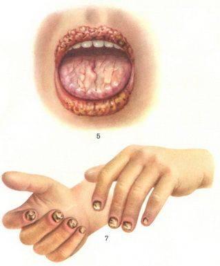 Кандидоз полости рта: симптомы, лечение4