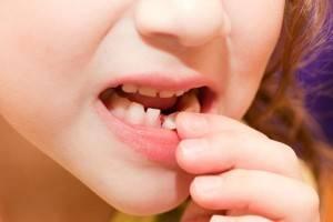 непосредственная смена молочных зубов постоянными