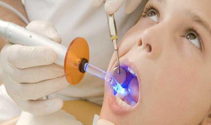 пломбирование зубов в домашних условиях