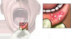 Причины и пути передачи стоматита