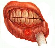 Признаки стоматита