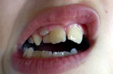 кривой зубной ряд