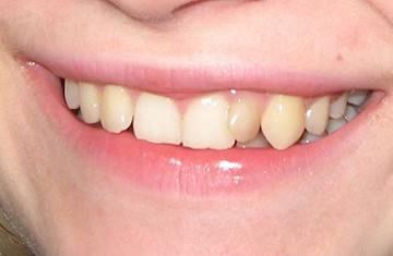 кривой ряд зубов