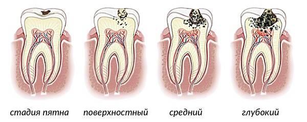 формы развития кариеса