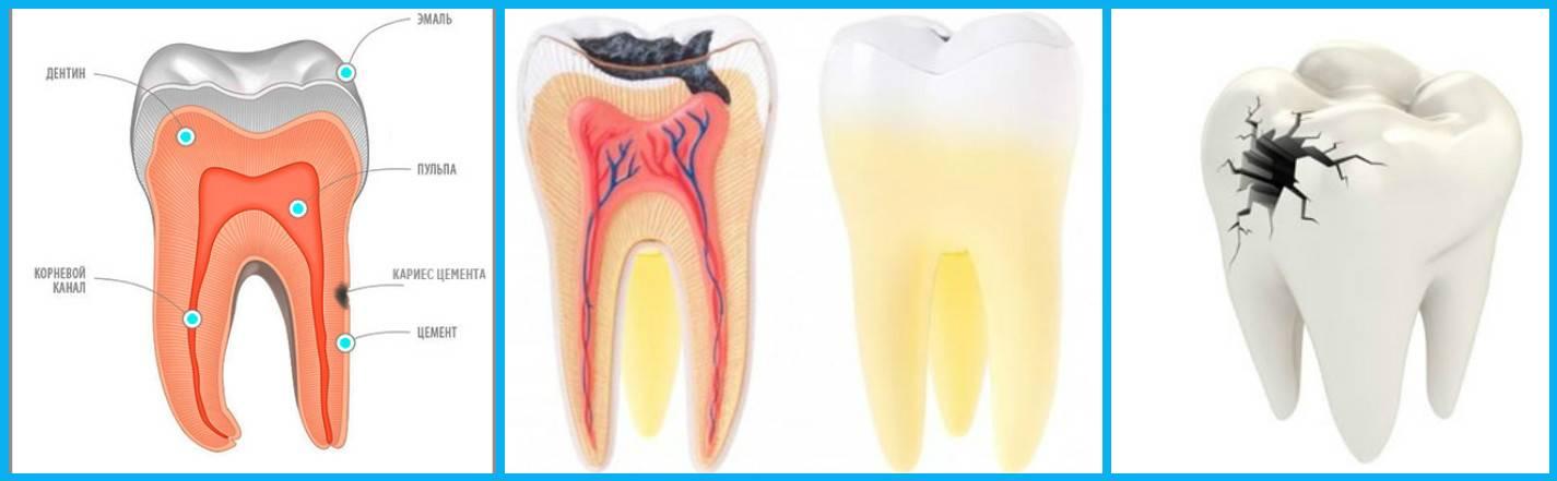 Могут ли зубы болеть от стресса