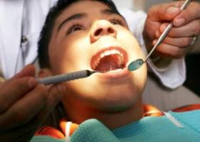 Процедура удаления зубов