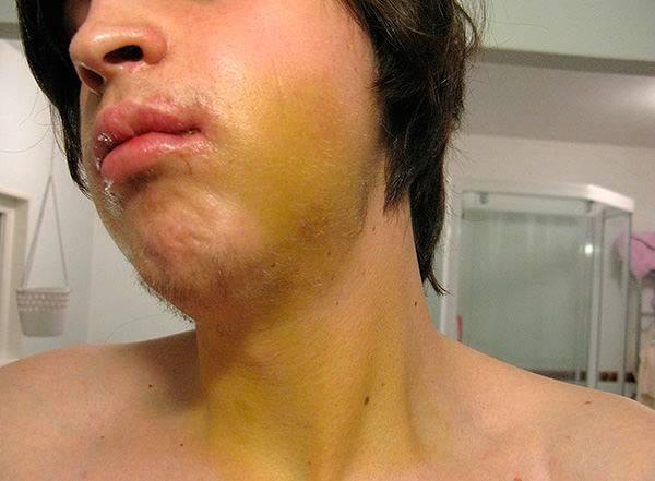 после имплантации зуба опухло лицо и губы