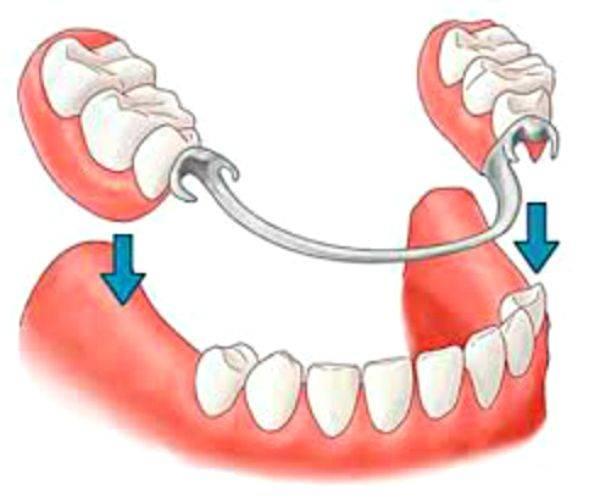 имплантация зубов или бюгельные