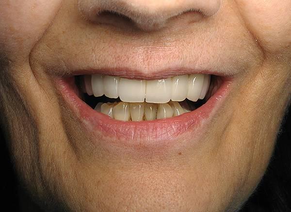 Бюгельное протезирование позволяет не только вернуть возможность нормально пережевывать пищу, но и получить красивую улыбку.