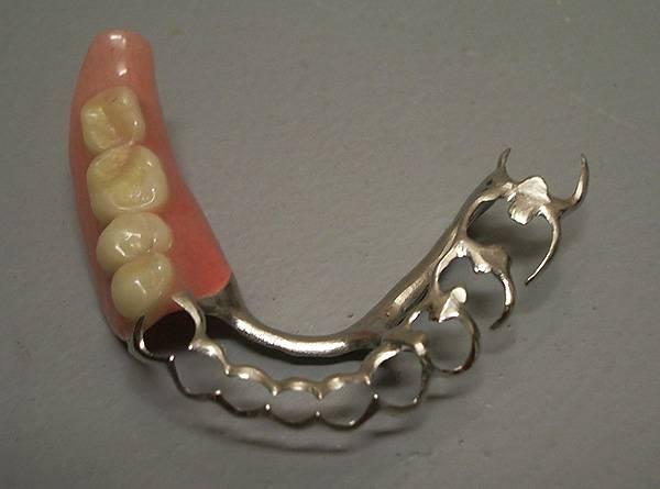 В ряде случаев путем бюгельного протезирования удается спасти подвижные зубы пациента от удаления - за счет шинирующего эффекта конструкции.