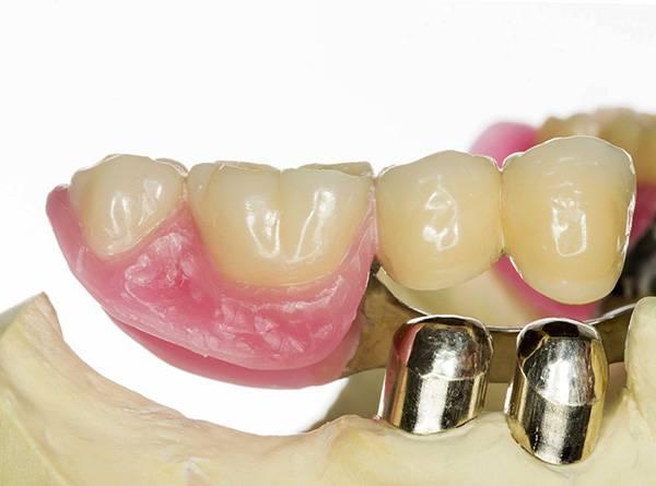 Коронки съемной части протеза надеваются на коронки, закрепленные на опорных зубах.