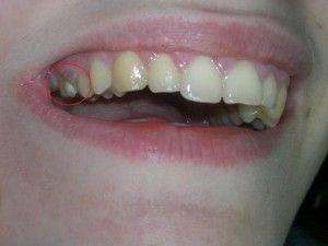 больной зуб