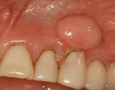чешутся зубы у взрослого человека