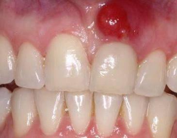 почему чешутся зубы