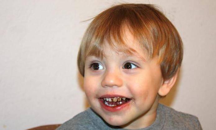 черные зубы у ребенка