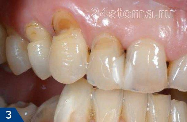 Клиновидные дефекты верхних зубов