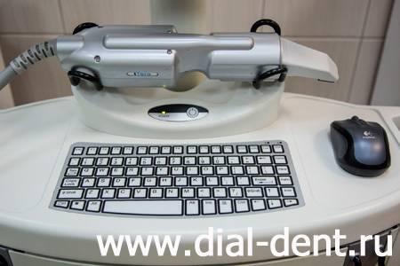 iTero - цифровой сканер для создания оттиска зубов