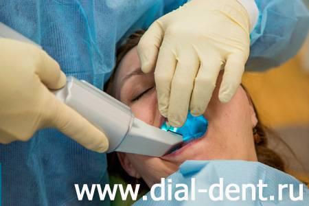 3D сканирование зубов
