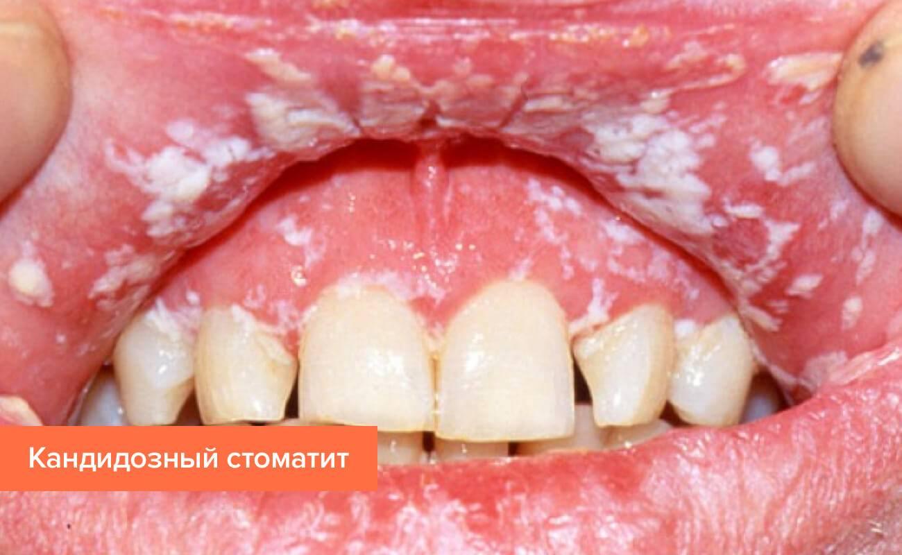 Фото кандидозного стоматита