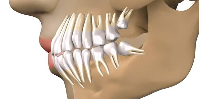 Схема положения ретинированного зуба мудрости
