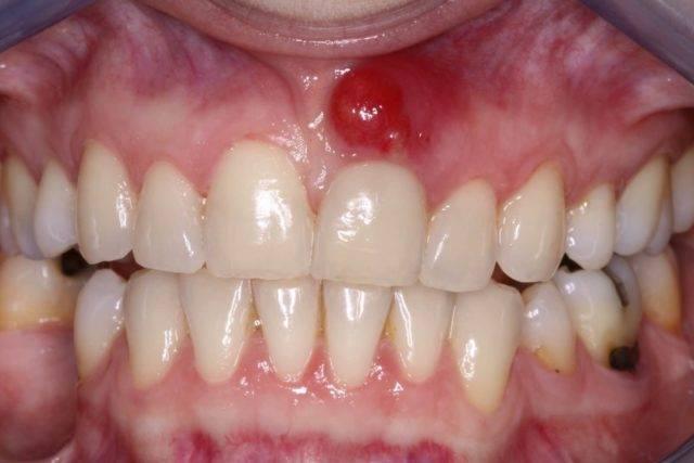 Чаще всего фурункулёз полости рта возникает в результате осложненной зубочелюстной патологии