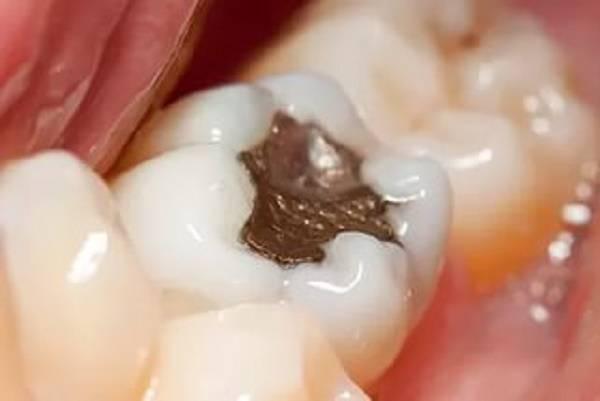 пульпит зуба у взрослого или ребенка