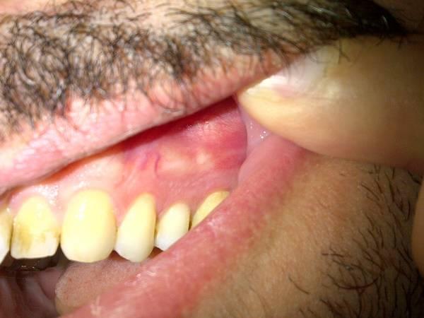 киста, причина зубной боли