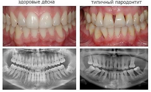 Чем полоскать рот при пародонтите – Болезни полости рта