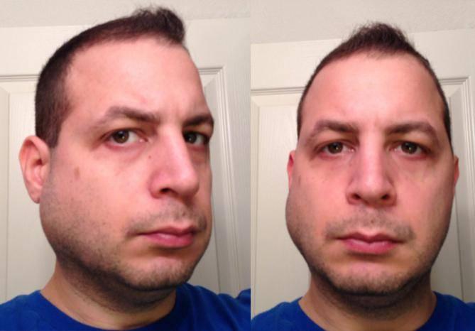 После удаления зуба опухла десна что делать и как лечить