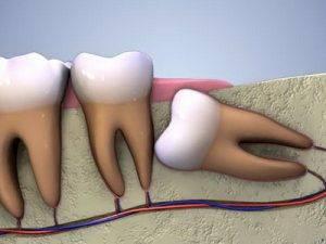 Ретинированый дистопированый зуба