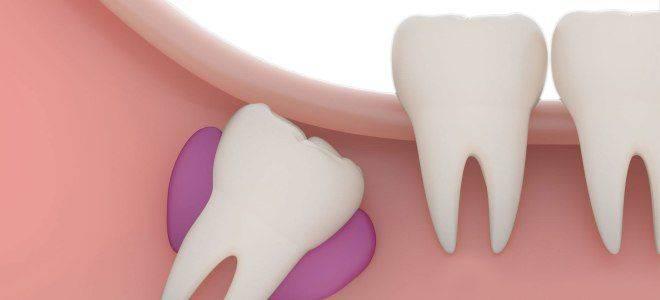 Как растут зубы мудрости