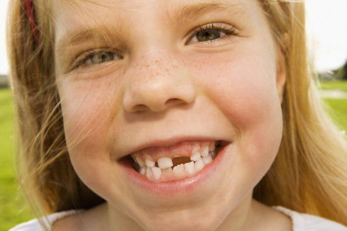 Выпадение молочных зубов у детей 5 лет