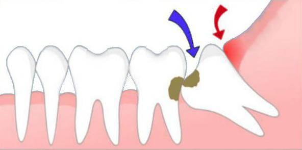 сколько каналов в зубе 6