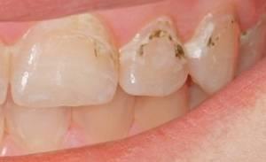 Почему появляются пятна на зубах от кофе