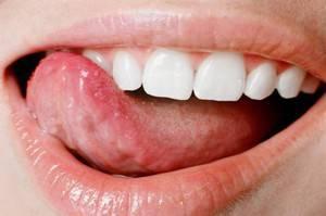 Под языком появились пупырышки — Зубы