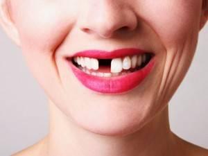 Выпадение зубов у взрослых