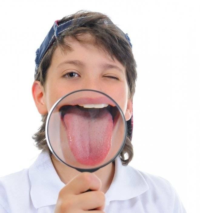 Почему желтеет поверхность языка