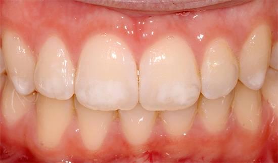 На фото приведен пример флюороза - на зубах много белых пятен, но это не кариес