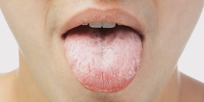 Трещины и белый налет на языке