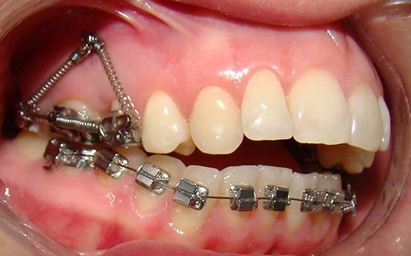 При открытом прикусе между зубными рядами имеется щель.