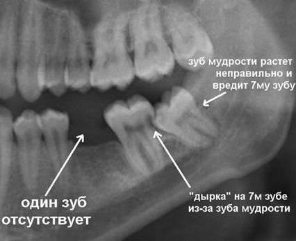 Что показывает рентген